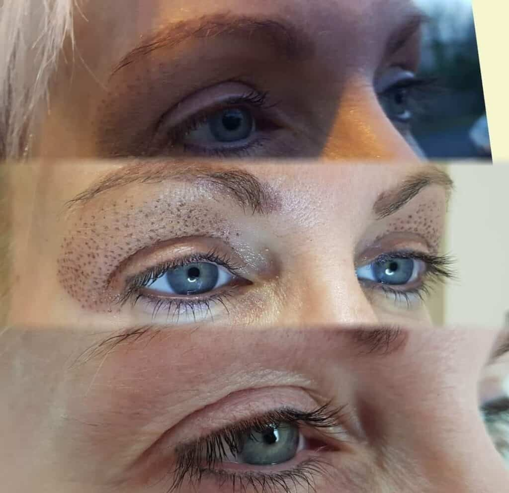 Fibroblast under eyes